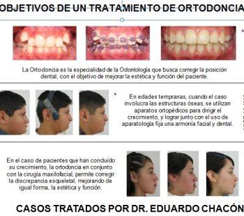 Orthoplus2.1